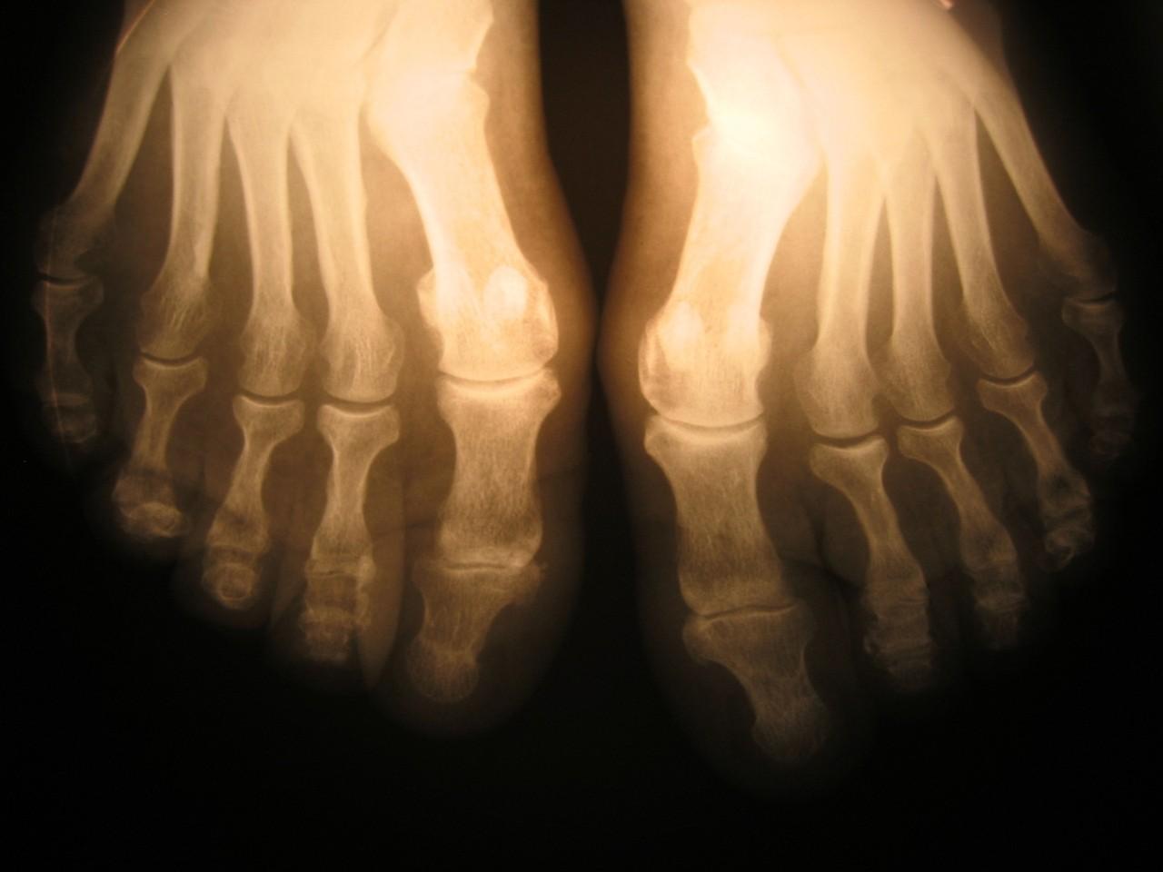 Kiedy udać się do ortopedy?