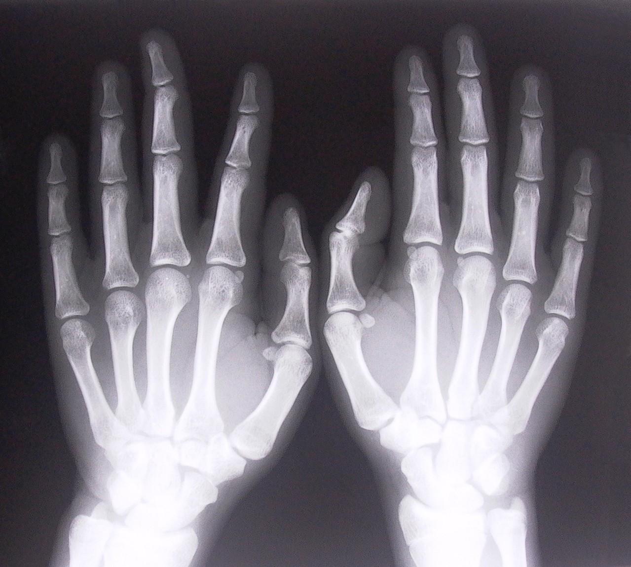 Ortopedia – jak wzmocnić kości?
