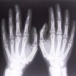 Czy korzystaliśmy z pomocy ortopedii?